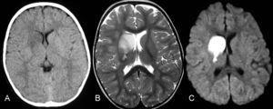 A: en la imagen axial de tomografía computarizada se observa una lesión hipodensa en los ganglios basales derechos con leve efecto de masa en el asta frontal ipsilateral. B: en la secuencia ponderada en T2 en el plano axial, la lesión es hiperintensa y afecta al núcleo caudado, lenticular, brazos anterior y posterior de la cápsula interna. C: en la secuencia potenciada en difusión, se observa una lesión hiperintensa, por la restricción al movimiento del agua debido al edema citotóxico.