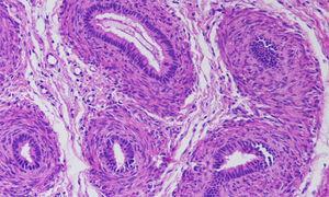 Estudio anatomopatológico de gónada izquierda (estroma fibromuscular sugerente de epidídimo).