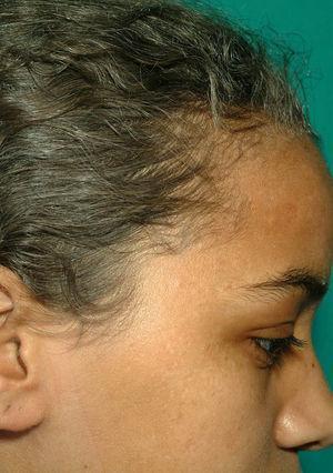 Detalle del característico cabello gris-plateado del SGP, en la paciente 1.