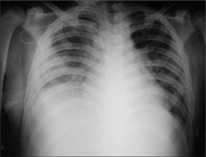 Radiografía de tórax que evidencia aumento en la densidad del hemitórax derecho con borramiento del receso costofrénico ipsolateral por derrame pleural y opacidades de patrón alveolar en el parénquima pulmonar adyacente.