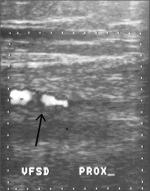 Estudio Doppler color en el cual se observan defectos de llenado en la vena femoral superficial derecha en su tercio proximal (caso 2).