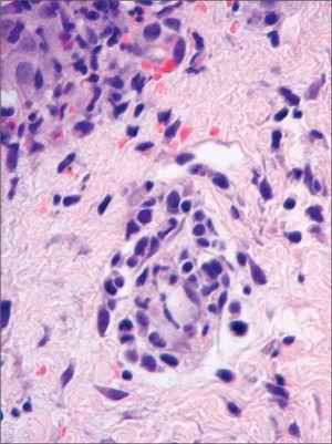 Infiltrado dérmico perivascular de células mononucleares atípicas (HE × 160).
