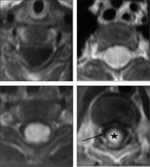 RM axial T1 tras la administración de gadolinio. La primera imagen muestra la hidrosiringomielia cervical. La segunda y la tercera muestran la lesión expansiva con una captación importante y homogénea del contraste. La última imagen presenta el extremo distal de la lesión (asterisco) y la hidrosiringomielia lumbar rodeándola (flecha).