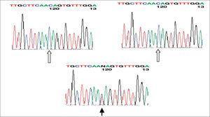 Secuenciación del IRE del gen de la L-ferritina: se muestra la presencia de las dos bases normales de citosina en los padres (flechas blancas) en la posición 39; en el hijo aparece una base de cromosoma normal y otra anormal de tirosina (mutación de novo) en dicha posición (flecha negra).