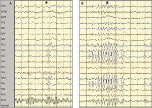 (A) Trazado electroencefalográfico en vigilia de un paciente en el que se registra actividad punta-onda de proyección media izquierda. (B) Durante el sueño aumenta la incidencia y duración de las descargas con difusión a áreas adyacentes.