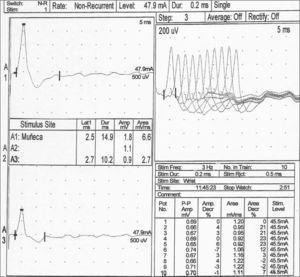 Estudio del nervio cubital derecho. En el canal A1 se registra el potencial de acción motor compuesto (CMAP) pasados 10min de la tetanización. El incremento tan significativo de la amplitud y el área (> 100 %), con respecto al valor basal previo (canal A3), mostró facilitación posactivación. La parte derecha de la gráfica indicó decremento del área del cuarta potencial de acción durante la estimulación repetitiva de baja frecuencia.