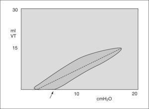 Gráfico de volumen-flujo. Distensibilidad baja. VT: volumen tidal.