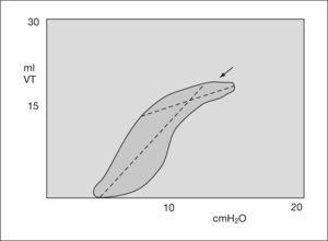 Gráfico de presión-volumen. Sobretensión. VT: volumen tidal.