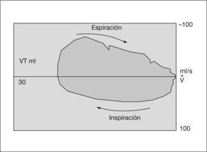 Gráfico de volumen-flujo. VT: volumen tidal.