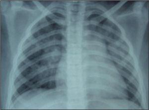 Radiografía de tórax al ingresar. Patrón alveolar parahiliar bilateral.