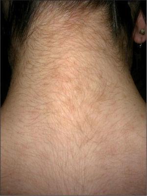 Pápulas parduscas finamente descamativas y confluentes en la cara posterior del cuello.