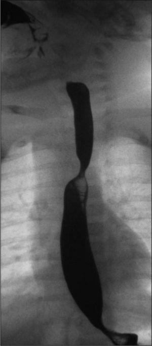 Proyección lateral del esofagograma en la que se objetiva escotadura medioposterior.