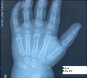 Radiografía de mano izquierda. Edad ósea correspondiente a 3–3,5 años a una edad de 22 meses.
