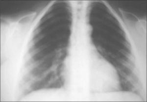 Radiografía de tórax. Se observa la ausencia de clavículas.