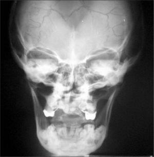 Radiografía de cráneo. Se observa la hipoplasia de maxilar superior.