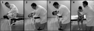 Maniobra de Epley: 1. Se sitúa al paciente sentado en la camilla con la cabeza girada 45° hacia el lado afectado. Se realiza un Dix-Hallpike hacia dicho lado, lo que desencadena el nistagmo, y se mantiene esta posición durante 2min. 2. Seguidamente, se gira la cabeza 180° hacia el lado contralateral, posición que se vuelve a mantener durante 2min. 3. Se gira al paciente hacia ese mismo lado hasta el decúbito lateral y mirando hacia el suelo durante 2min. 4. Se incorpora lentamente hasta quedar sentado con la cabeza inclinada 20°.