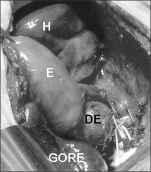 Duplicación esofágica (DE) situada a la entrada del estómago (E). Reparación del defecto diafragmático con placa de Gore-Tex®.