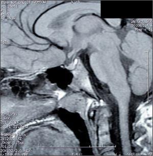RM cerebral a los 9 meses del diagnóstico, corte sagital. Tumoración selar residual. Ausencia de extensión supraselar.