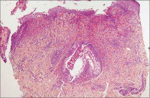 Imagen histológica panorámica de la biopsia cutánea. Puede observarse un denso infiltrado inflamatorio predominantemente eosinfílico y mixto perifolicular e intersticial dérmico, con afectación de la glándula sebácea, así como espongiosis y exocitosis de eosinófilos en la epidermis.
