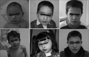Fenotipo facial característico a distintas edades.