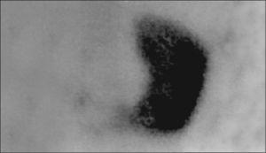 Estudio gammagráfico (DMSA) en el que se observa una captación del trazador casi exclusivamente en el riñón izquierdo, unido por su polo inferior al riñón derecho, en el que existe una displasia multiquística, que se corresponde con la imagen ecográfica de la figura 1.