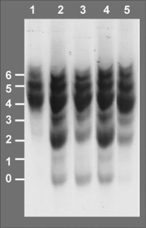 Isoelectroenfoque de la transferrina sérica. Los números a la izquierda indican el grado de glucosilación de las diferentes isoformas de la transferrina, siendo las bandas 0, 1 y 2 las que corresponden a las formas hipoglucosiladas a-, mono y di-sialotransferrina, respectivamente. Carril 1: control. Carril 2: paciente al diagnóstico, episodio de hipoglucemia, desnutrición, hepatomegalia e hipertransaminasemia, 42% de %CDT. Carril 3:paciente en tratamiento con manosa a dosis de 150mg/kg en 4 dosis, mejoría en la curva de peso, 24 % de %CDT. Carril 4, paciente tras presentar diarrea prolongada, hipoalbuminemia, pérdida de peso y anticuerpos antitransgliadina positivos, dieta sin gluten, administración irregular de manosa, 30 % de %CDT. Carril 5: paciente 6 meses después de incrementar la dosis de manosa a 1g/kg/día en 5 dosis, curva de peso ascendente, transaminasas y estudio de coagulación normal, 6 % de %CDT.