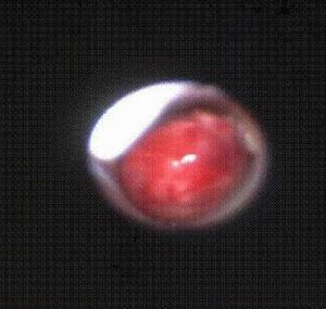 Imagen de fibrobroncoscopia: tumoración lobulada muy vascularizada en bronquio principal derecho.