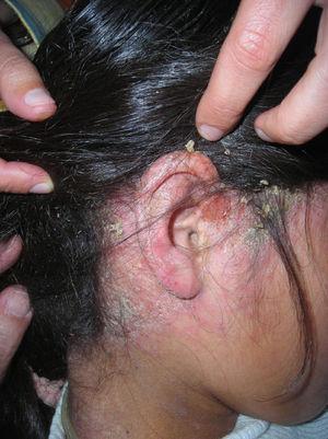 Placa eritematosa y descamativa en la zona retroauricular y el cuero cabelludo.