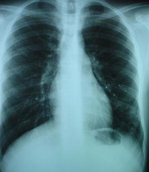 Radiografía de tórax tras embolización de la fístula con 4 plugs vasculares.