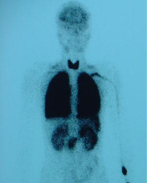 Gamagrafía pulmonar de perfusión. Actividad de radiotrazador en cerebro, tiroides, bazo y riñones. Cortocircuito de derecha a izquierda del 28%.
