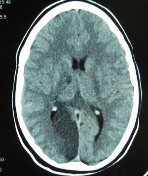 TAC craneal: infarto en el territorio de la arteria cerebral posterior derecha y en el tálamo derecho.