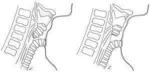 Representación esquemática de diversión traqueoesofágica (izquierda) y separación laringotraqueal (derecha).