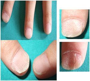 Aspecto clínico de las lesiones ungueales al diagnóstico, donde se observan estriaciones longitudinales, con pérdida del brillo, pitting y deslustramiento de la lámina ungueal que permitió el diagnóstico de traquioniquia.