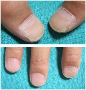 Aspecto clínico de las uñas tras 6 meses con tratamiento con apósitos ungueales con importante mejoría de las lesiones.