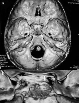 A. tomografía computarizada (TC) con reconstrucción tridimensional: sospecha de osteocondroma selar con extensión supraselar e invasión del seno cavernoso izquierdo. B. Ampliación de la imagen.