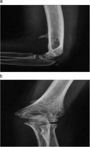 (a y b). Radiografía anteroposterior y lateral de codo. Apófisis supracondílea.