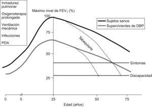 Cambios en el flujo espiratorio en el primer segundo. Modelo teórico en supervivientes de displasia broncopulmonar y sujetos sanos91.