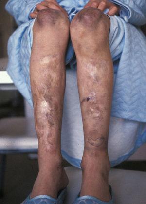 Cicatrices atróficas papiráceas.
