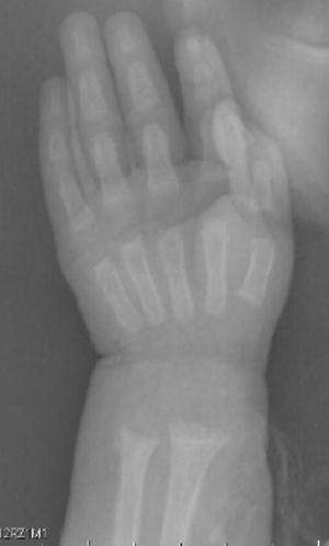 Radiografía de muñeca: metáfisis ensanchada, separada, acopada y desflecada.