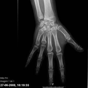 Rx de mano del paciente: braquimetacarpia en cuarto dedo y adelanto de la edad ósea.