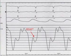 Cateterismo cardiaco. Morfología en Dip-Plateu en la curva de presiones del ventriclo derecho.