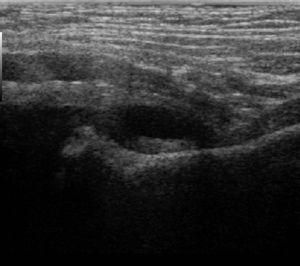 Ecografía de cadera en artritis séptica.