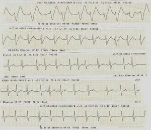 Evolución electrocardiográfica del paciente. Nótese el estrechamiento progresivo del QRS según el transcurso horario, con ritmo inicial de la unión hasta la restauración final del ritmo sinusal 12h después de iniciado el tratamiento. Mediciones finales PR 160ms, QRS 100ms, QTc 485ms.