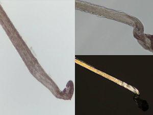 A, B) Tricograma: pelos terminales en fase anágena con morfología de bulbo en maza y cutícula de morfología espiroidea. C) La luz polarizada resalta la cutícula «en sacacorchos» sin observarse otras alteraciones.