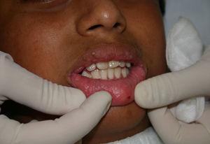 Caso 1. Pápulas de 2 a 4mm confluentes en semimucosa labial.