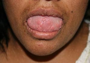 Caso 2. Lesiones papulosas que confluyen formando placas en semimucosas labiales y lengua.