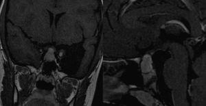 RM cerebral al diagnóstico. Tumoración selar de 1,7×1,5×1,5cm, con extensión supraselar.