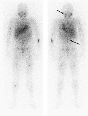 Imágenes del rastreo con 123I-MIBG, en el que se evidencian múltiples depósitos patológicos osteomedulares localizados en la base craneal izquierda, columna vertebral, pelvis y esqueleto apendicular.