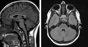 Resonancia magnética craneal: tumoración intra y supraselar.