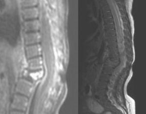 Aplastamiento vertebral de L1 con protrusión posterior, cifosis y cambios circundantes en RM de columna vertebral.